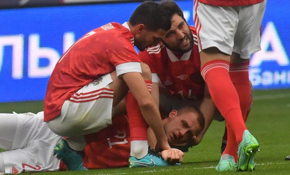У Дмитрия Баринова, получившего травму в матче с Болгарией, все в порядке. Фото: «КП Спорт»